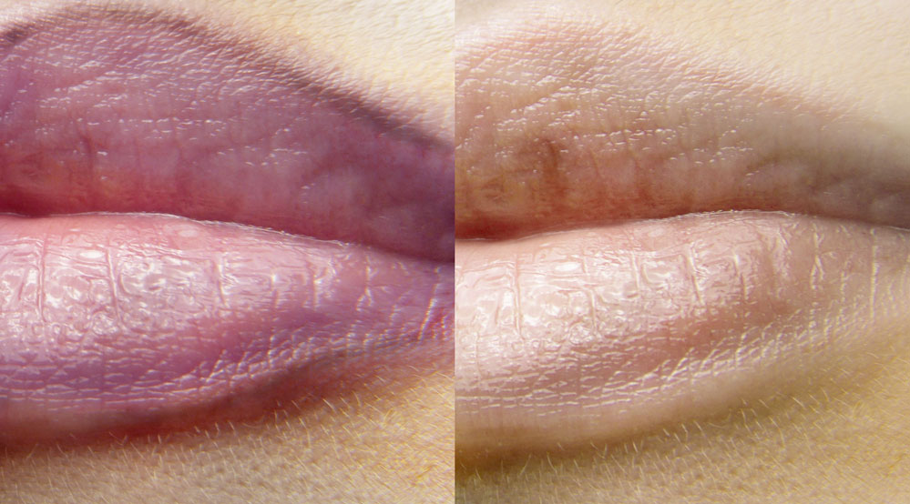 Lippen PMU Entfernung